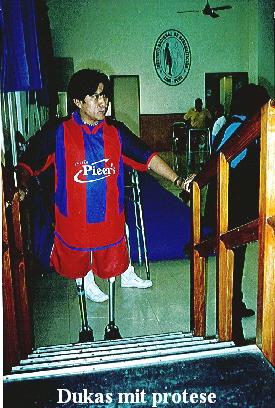 Dukas mit protese